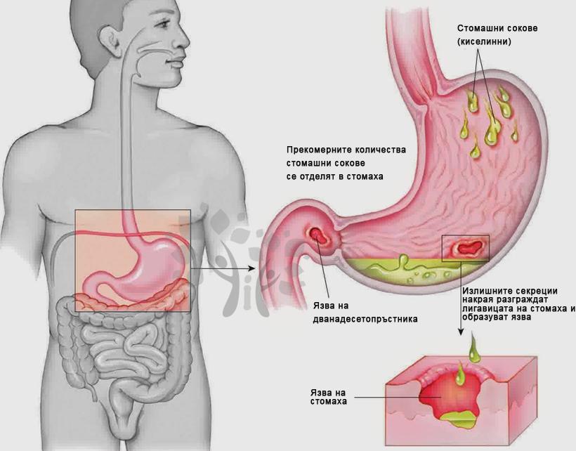 Гастрит - симптоми и превенция